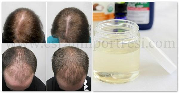1 yeniden saç çıkaran hint yağı