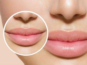 dolgun dudaklar için ne yapnmalı ön_mini